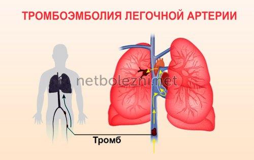 Лечение болезни легких