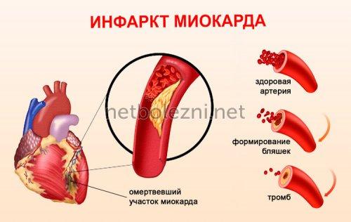 Заболевание инфаркт миокарда