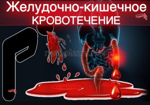 Желудочно кишечные кровотечения