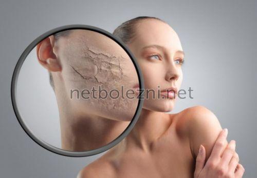 Cухая кожа на теле