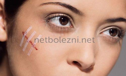 У девушки шрам на щеке