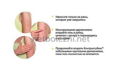 Как применять крем от рубцов