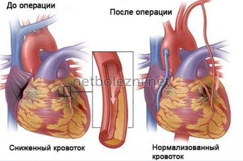 Кровоток после операции