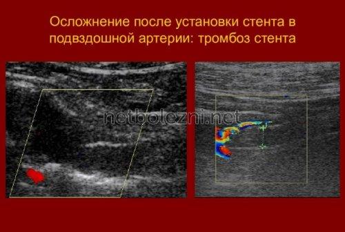 Тромбоз стента после операции