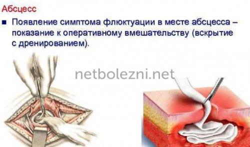 Удаление абсцесса хирургически