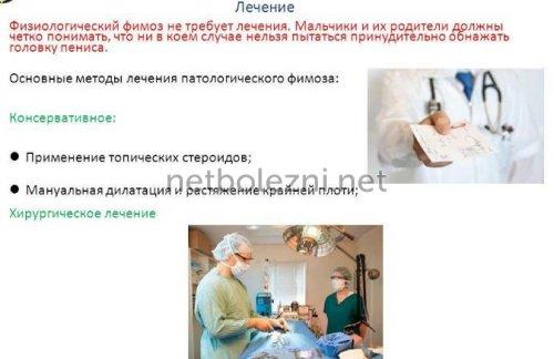 Виды лечения при фимозе