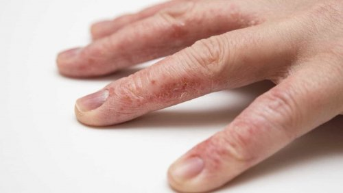 Экзема на пальцах