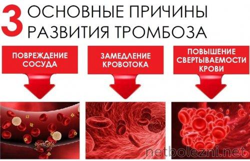 Основные причины патологии