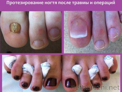Протезирование ногтя после операции