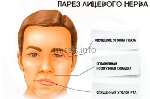 Паралич лицевого нерва