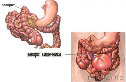 Патология заворот кишечника