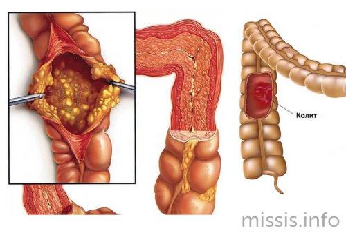 Колит толстого кишечника