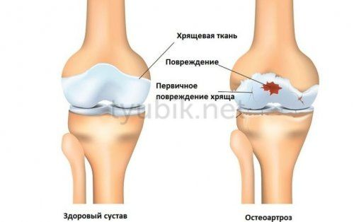 Заболевание суставов остеоартроз