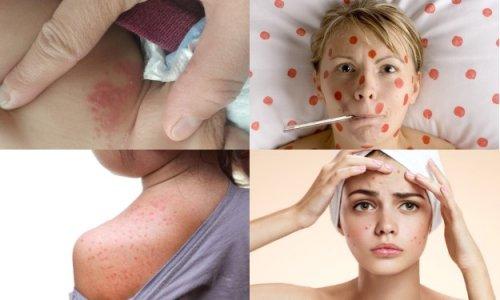 Кожно-инфекционные заболевания