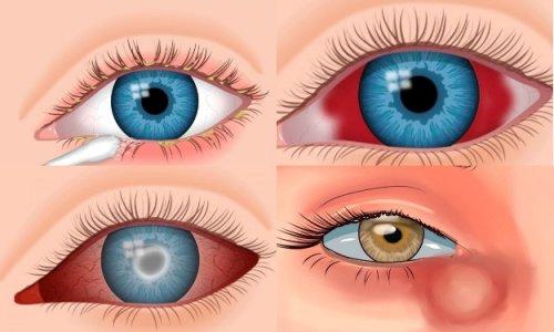 Формы глазных болезней
