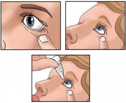 Как правильно закапать глаза