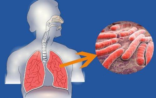 Препарат при туберкулезе